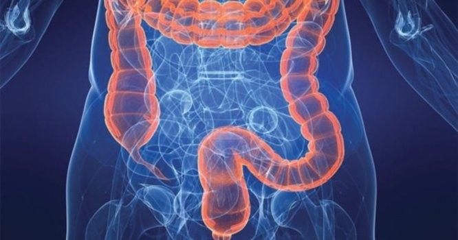 rezultatele pierderii în greutate din colon