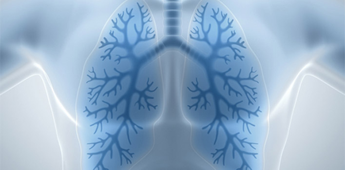 Lung Cancer Screening Early Detection Saves Lives